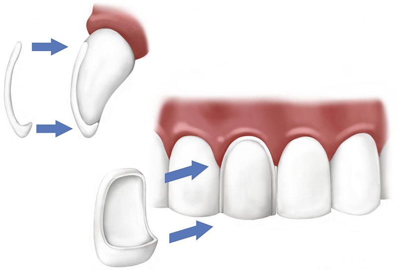 Dental Veneers San Dimas
