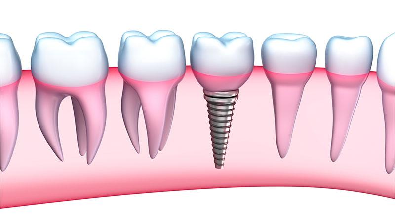 Dental Implants San Dimas