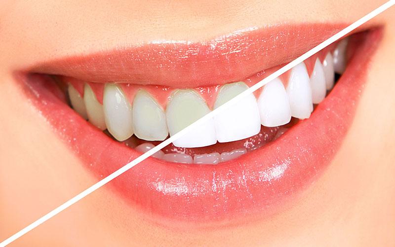 Отбеливание зубов лондон